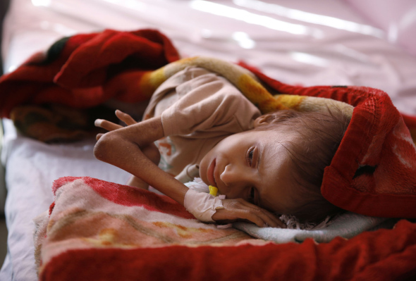 Yemen to face 'largest famine' if blockade not lifted