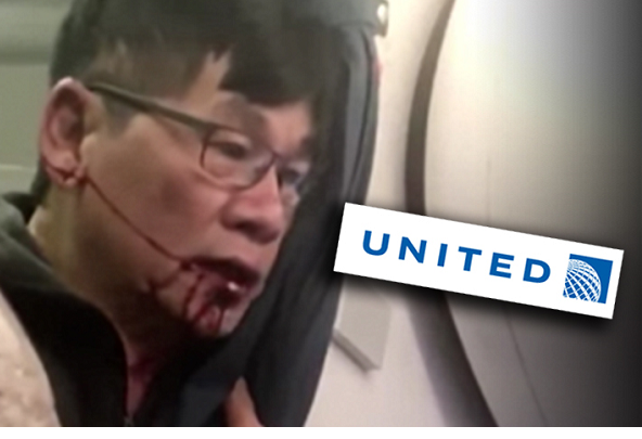 United passenger suffers concussion, nose teeth injures