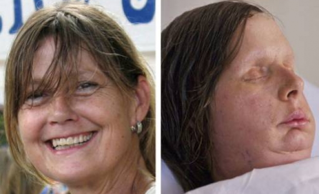US woman mauled by chimp shows new face in first photo