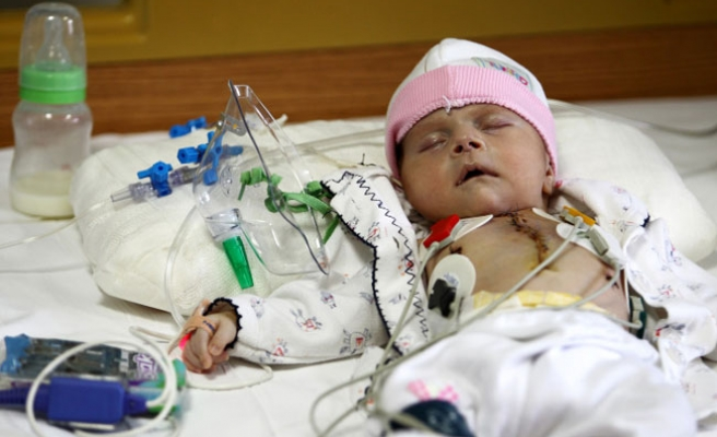 Turkish baby born with heart outside body operated