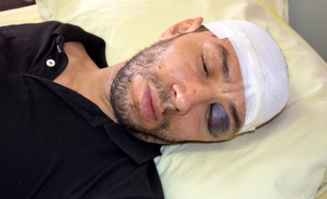 French journalist wounded in Syria brought to Turkey
