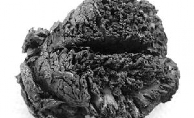 4000-year-old brain found in Turkey