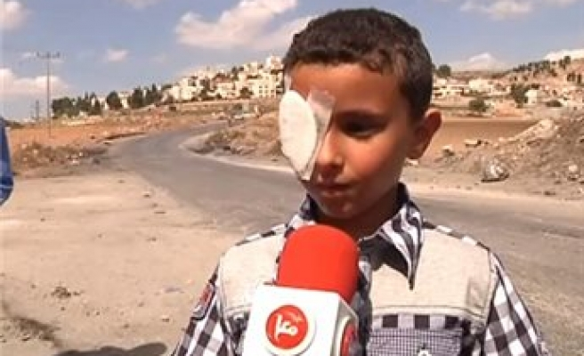 6-year-old loses eye after Israeli forces open fire