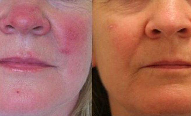 Experts uncover clue in rosacea progress