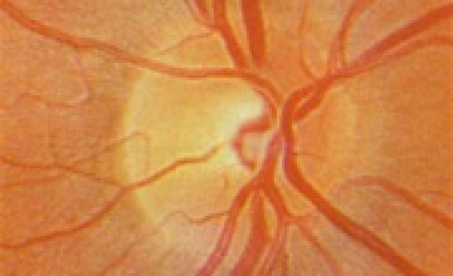 Scientists discover cause of major subtype of glaucoma