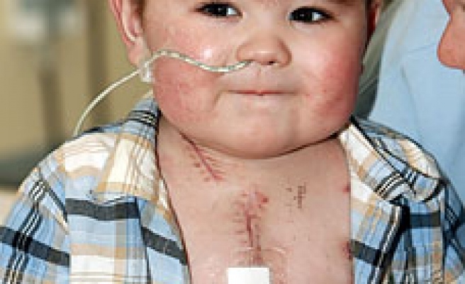 Boy lives for 120 days with 'heart' outside his body