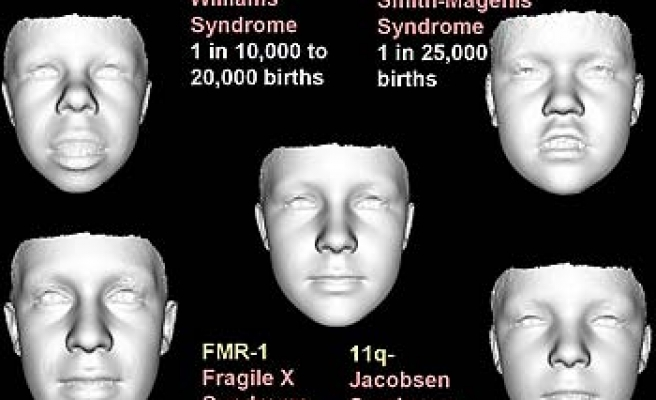 Face can help diagnose rare genetic disorders