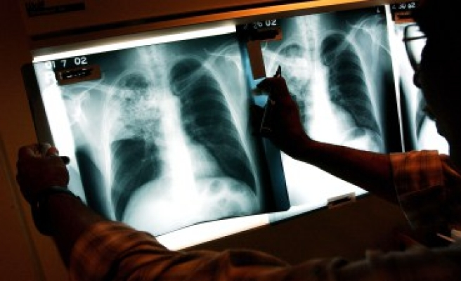 Tuberculosis and superbug strains 'ravaging' Europe