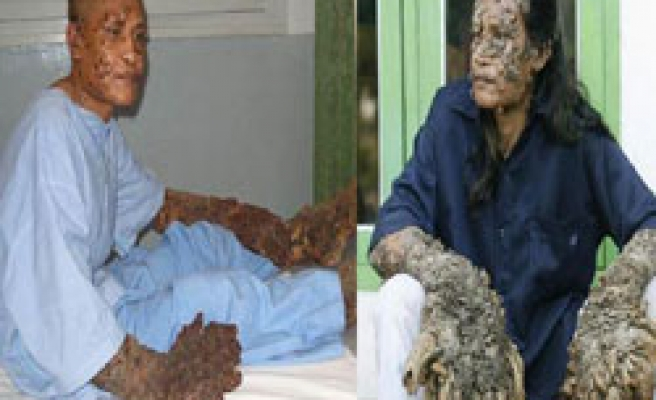 'Tree man' hopes to marry after 4lb of warts removed / VIDEO