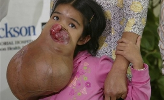 Girl survives surgery to remove giant facial tumor