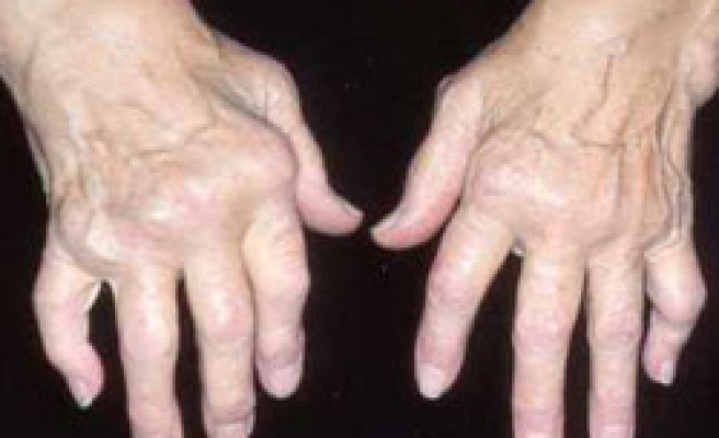 First vaccine of rheumatoid arthritis tested
