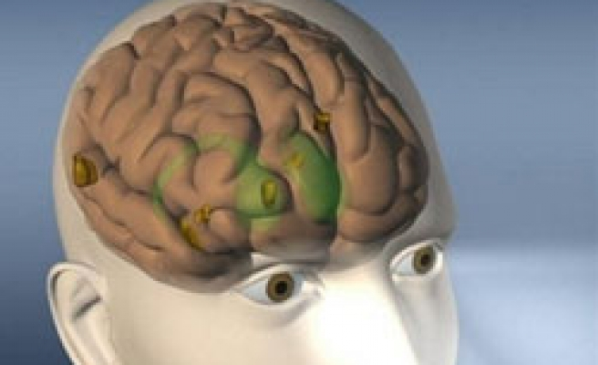 Diabetes can slow the brain, study finds
