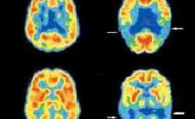 Alzheimer's, cancer less likely together