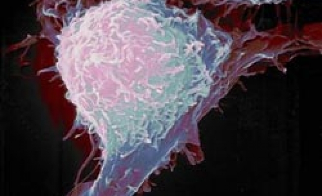 Debate on prostate cancer screening, more harm than good?