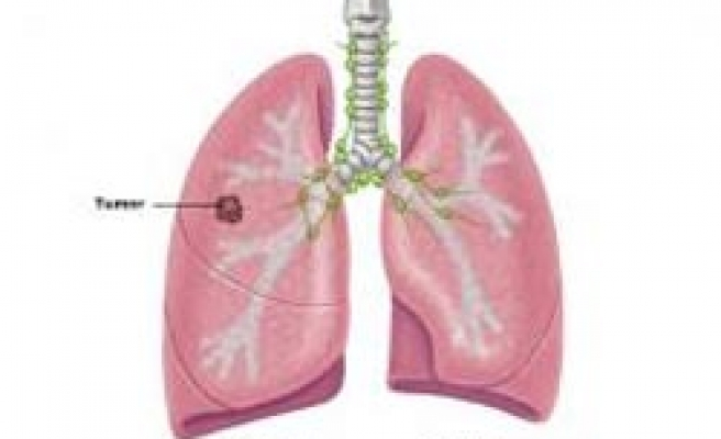 Researchers find sex-specific lung cancer genes