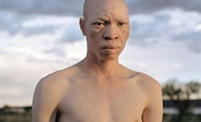 Kenayan jailed for trying to sell albino to Tanzanian witchdoctors