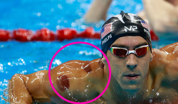 The Olympics, Cupping and Prophet Muhammad