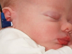 Early intervention helps infants born deaf