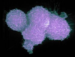 Leukemia virus might be one cause of prostate cancer: study