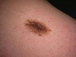 Is there really a skin cancer epidemic?