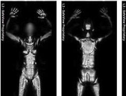 US Supreme Court rejects complaint on full-body scanners