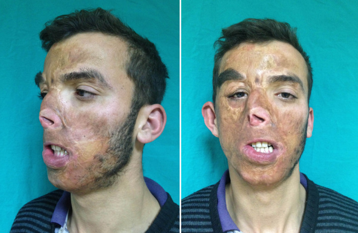 Turkish face transplant patient in good condition