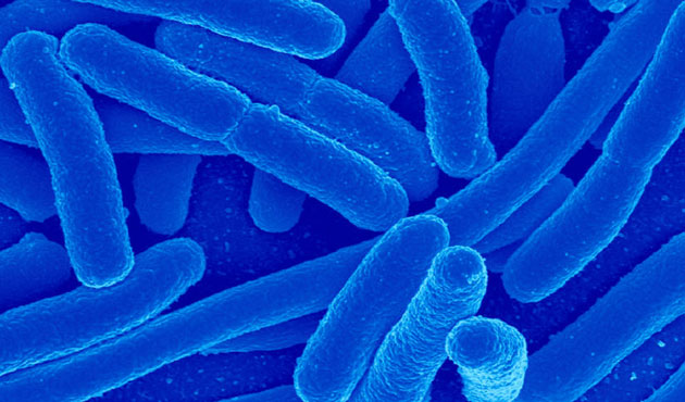 Los Angeles hospital warns 179 patients possibly exposed to 'superbug'