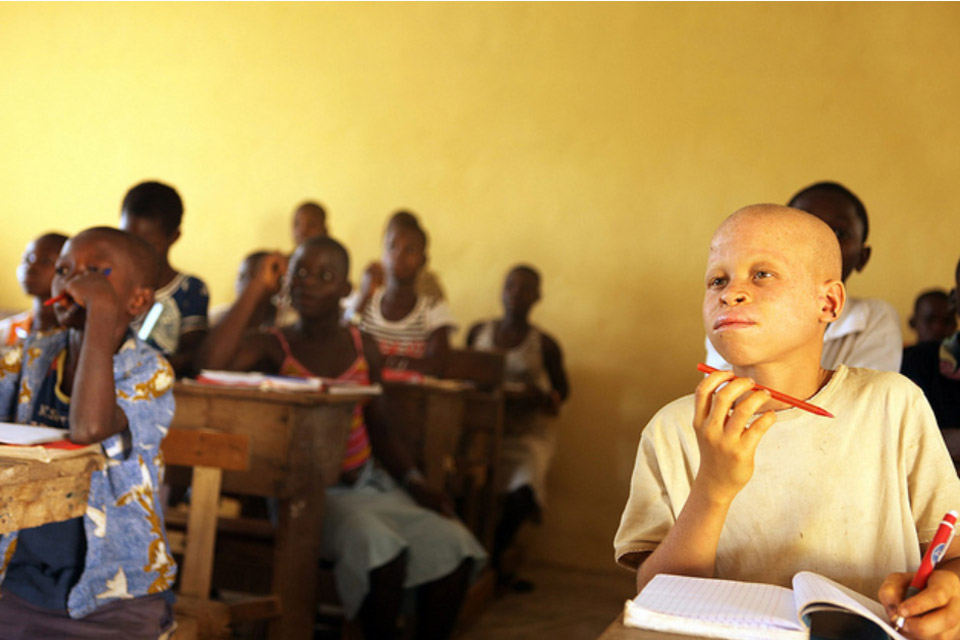 UN condemnskilling of albinos in East Africa