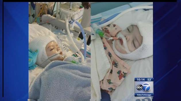 Doctors separate conjoined twins at NY hospital