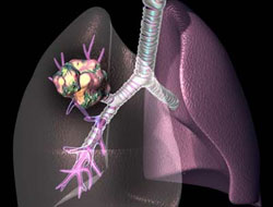 Scientists find lung cancer can lie hidden for 20 years