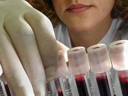 U.S. officials purge biosafety board in midst of anthrax crisis