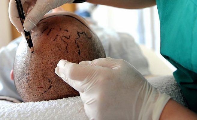 Turkey top choice for hair transplants in Europe