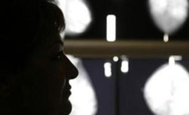Mammograms less accurate in breast cancer survivors