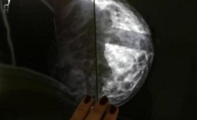Mammograms catch few cancers in young women: study